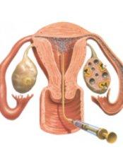 AI - Artificial Insemination - Fertility Clinic Puducherry