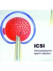 ICSI - Intracytoplasmic Sperm Injection - Fertility Clinic Puducherry