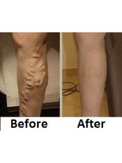 Varicose Veins Treatment  - Dato' Dr TK Ho Vascular & Advanced Surgery Centre