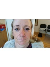 Dermal Fillers - The Wells Clinic