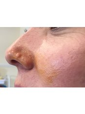 Mole Removal - The Wells Clinic