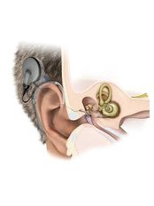 Cochlear Implants - Vikram ENT Hospital
