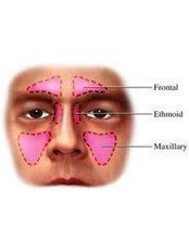 Sinus Surgery - Vikram ENT Hospital
