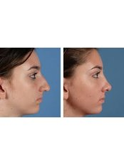 Rhinoplasty surgery - ENT Clinic Kestrel Medical Centre