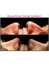 Open Rhinoplasty - Dr Murat Enoz, ENT Specialist - Private Office