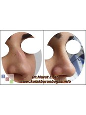 Rhinoplasty - Dr Murat Enoz, ENT Specialist - Private Office