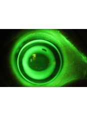 Special contact lens fitting - Sight Enhancement Center
