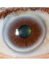 Photo taking for any abnormality for referral - Sight Enhancement Center