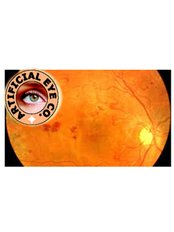 Low Vision Exam - Artificial Eye Co.