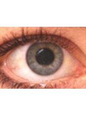 Cataract Treatment - Sunetra Eye Laser and Dental Care