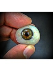 Art Eyes a custom made artificial eye centre - Prosthetic Eye made by 3D technique