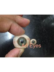 Prosthetic - Eyes - Art Eyes a custom made artificial eye centre