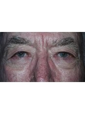 Eyelid surgery - Clearvision Medicare