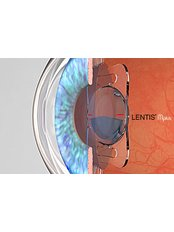 Intraocular Lenses - Clearvision Medicare