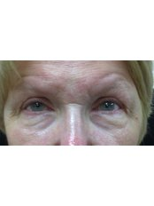 Eye Lift - Clearvision Medicare
