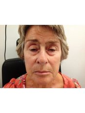 Brow Lift - Clearvision Medicare