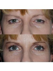 Blepharoplasty - Clearvision Medicare