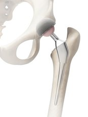 Knee Replacement - Smart Choice Medical Travel