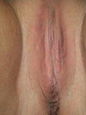 Laser Vaginal Rejuvenation - EVA Hospital