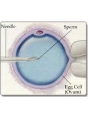ICSI - Intracytoplasmic Sperm Injection - ARC International Fertility and Research Centre-Perambur