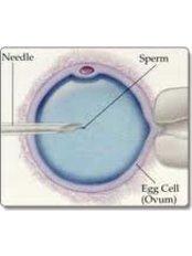 ICSI - Intracytoplasmic Sperm Injection - ARC International Fertility and Research Centre-Perungudi