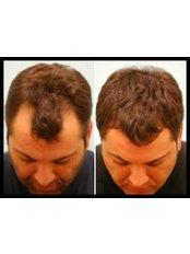 Hair Transplant - Australian Institute of Hair Restoration - Sydney