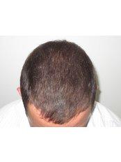 Treatment forMale Pattern Baldness - Hair Health Australia
