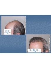Hair Transplant - Hair Transplant Institute - Dr. Alba Reyes, MD