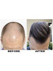 FUE - Follicular Unit Extraction - ForHair Hair Transplant Clinic