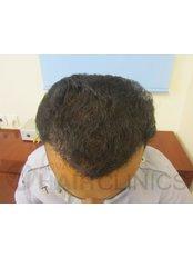 Hair Transplant - Advance Hair Clinics