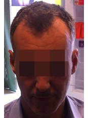 FUE - Follicular Unit Extraction - Advance Hair Clinics