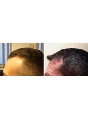 Hair Transplant - FUE2 Safe System - Written guarantee - HairPalace Hair Transplant Clinic