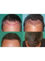 Hair Transplant - Dermasculpt Skin and Hair Clinic