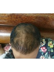 3 months after Hair Transplant - Revive Aesthetic Clinic- Bangalore