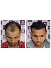Hair Transplant - AKESO Hair Transplant and Plastic Surgery