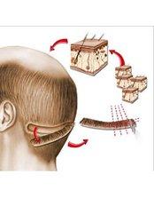 FUT - Follicular Unit Transplant - Berkowits Hair & Skin Clinic(Vikaspuri)