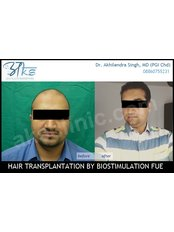 Result after 8 months in high grade baldness - AKS Hair  Transplant Clinic