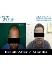 Result in grade VI baldness.. - AKS Hair  Transplant Clinic