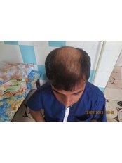 Dr.Khan's exclusive hair transplant center - Dr.Khan's FUE Hair Transplant,banjara hills,Hyderabad.