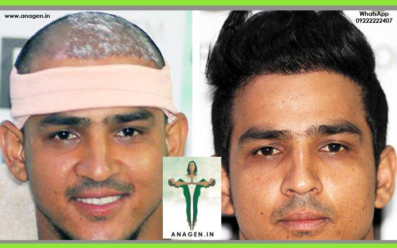 Anagen Hair Transplant Clinic Mumbai In Mumbai India Read 18 Reviews