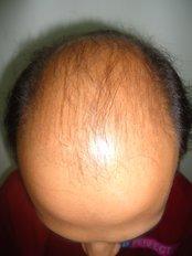 Hair Transplant - HARLEYS CLINIC