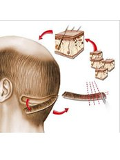 FUT - Follicular Unit Transplant - Berkowits Hair & Skin Clinic(Connaught Place)