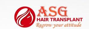 Asg Hair Transplant - Ludhiana