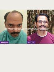 TRICHOS Hair Transplant Institute - Plot no 72,1st Floor,, Above Vision Express, Opp AS Rao nagar Khaman, Hyderabad, Hyderabad, Telangana, 500062,