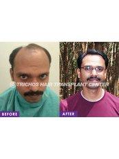 TRICHOS Hair Transplant Institute - Plot no 72,1st Floor,, Above Vision Express, Opp AS Rao nagar Khaman, Hyderabad, Hyderabad, Telangana, 500062,  0