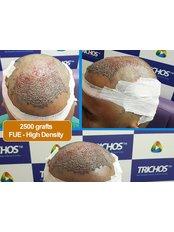 BIO-FUE Hair Transplant - TRICHOS Hair Transplant Institute