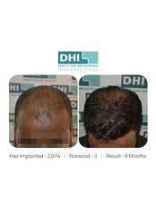 Treatment for Male Pattern Baldness - DHI - Chennai
