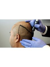 Dr Turan Baday - Doctor at Baday Hair Center
