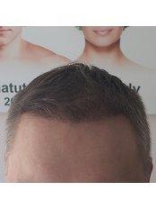 Hair Transplant FUE - Hair transplant clinic Rubenhair Latvia