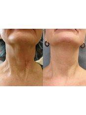 Radiofrequency Skin Tightening - Hair transplant clinic Rubenhair Latvia
